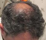 Vamos a realizar una Prótesis Parcial de cabello natural.