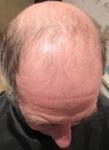 Realizaremos una Prótesis Parcial de cabello natural